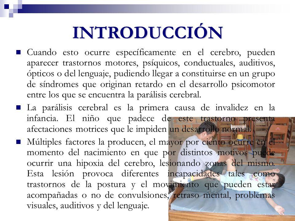 ¿Qué es parálisis cerebral infantil (PCI).