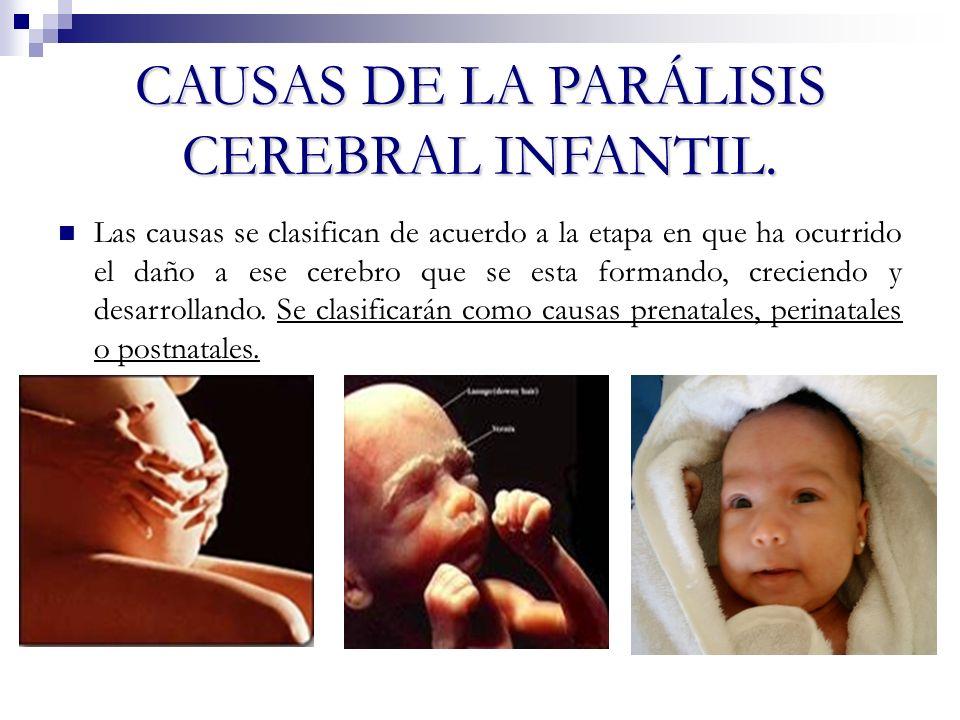 CAUSAS DE LA PARÁLISIS CEREBRAL INFANTIL. Las causas se clasifican de acuerdo a la etapa en que ha ocurrido el daño a ese cerebro que se esta formando