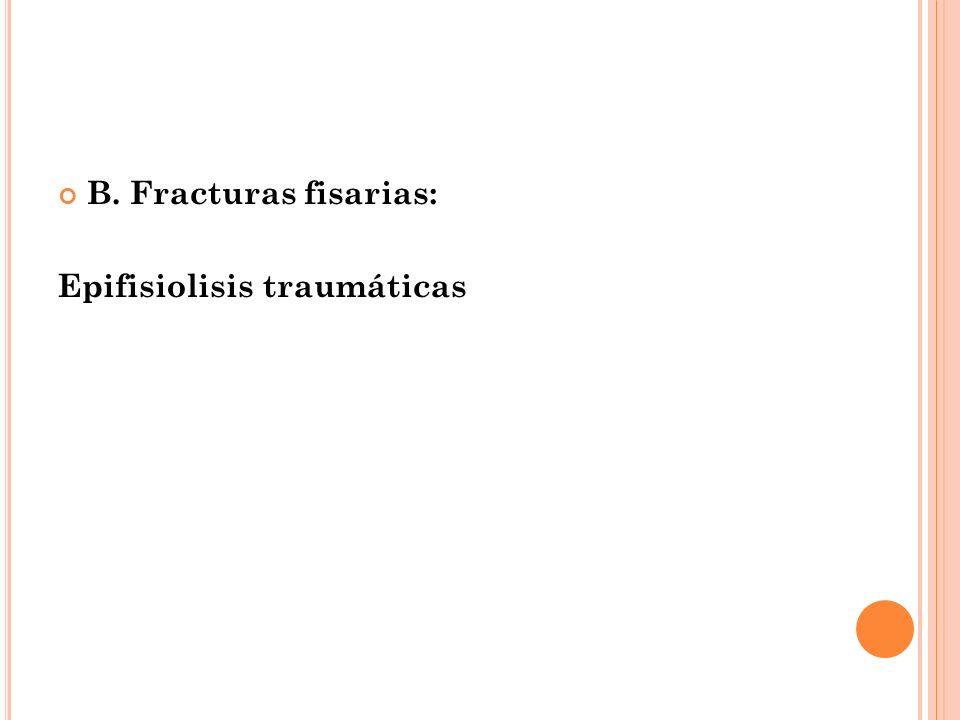 B. Fracturas fisarias: Epifisiolisis traumáticas