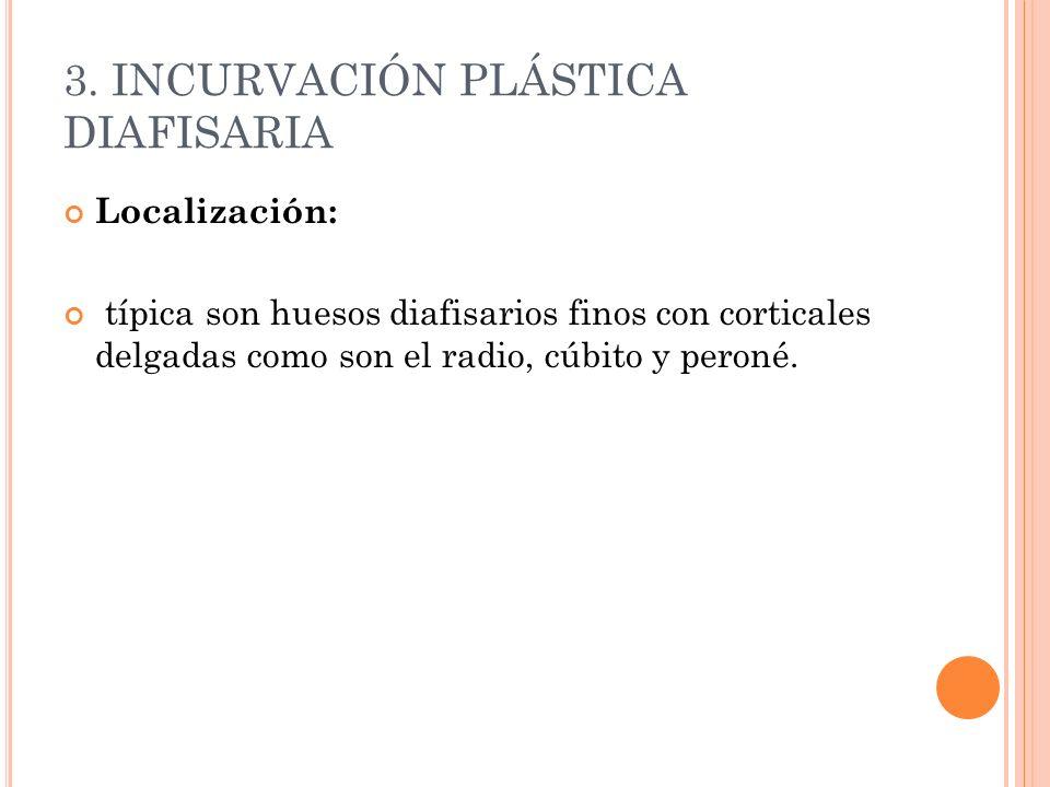 3. INCURVACIÓN PLÁSTICA DIAFISARIA Localización: típica son huesos diafisarios finos con corticales delgadas como son el radio, cúbito y peroné.