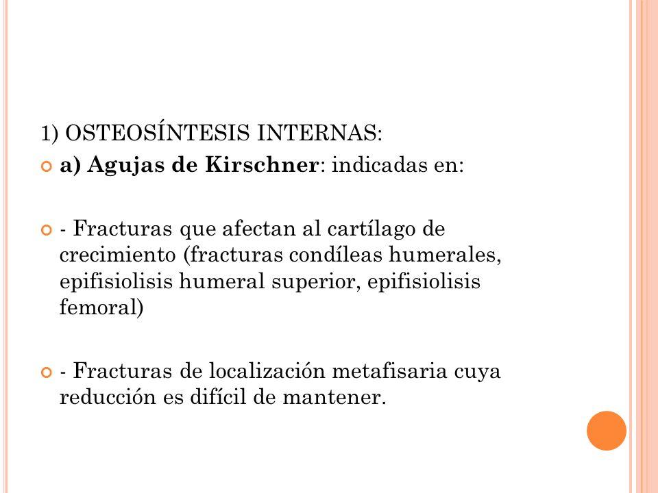 1) OSTEOSÍNTESIS INTERNAS: a) Agujas de Kirschner : indicadas en: - Fracturas que afectan al cartílago de crecimiento (fracturas condíleas humerales,