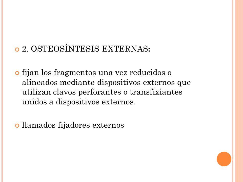 2. OSTEOSÍNTESIS EXTERNAS : fijan los fragmentos una vez reducidos o alineados mediante dispositivos externos que utilizan clavos perforantes o transf