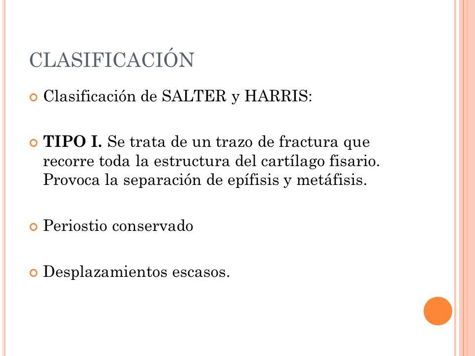 CLASIFICACIÓN Clasificación de SALTER y HARRIS: TIPO I. Se trata de un trazo de fractura que recorre toda la estructura del cartílago fisario. Provoca