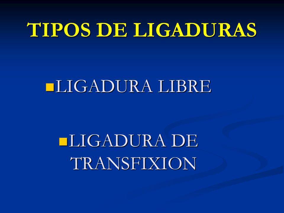 TIPOS DE LIGADURAS LIGADURA LIBRE LIGADURA LIBRE LIGADURA DE TRANSFIXION LIGADURA DE TRANSFIXION