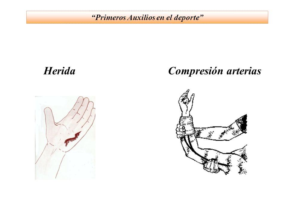 HeridaCompresión arterias Primeros Auxilios en el deporte