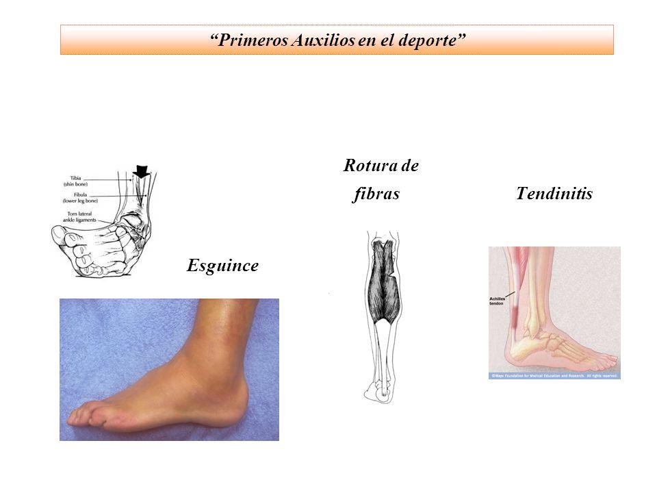 (c) Luxaciones : pérdida de la posición normal de los huesos que conforman una articulación.