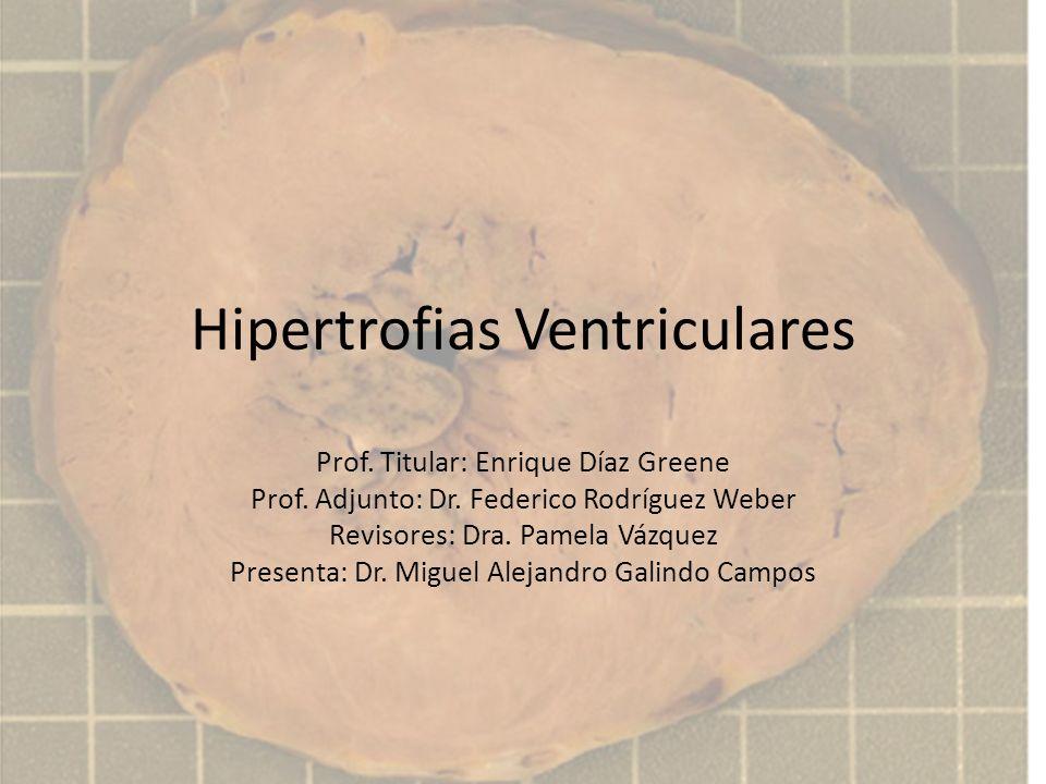 Hipertrofias Ventriculares Prof. Titular: Enrique Díaz Greene Prof. Adjunto: Dr. Federico Rodríguez Weber Revisores: Dra. Pamela Vázquez Presenta: Dr.