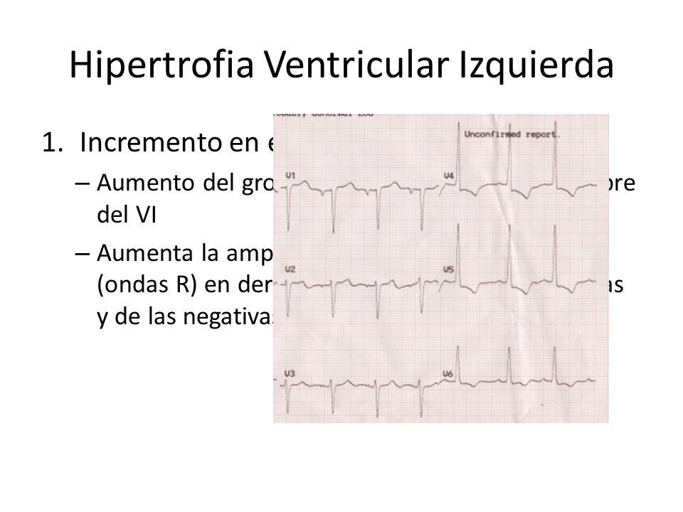 Hipertrofia Ventricular Izquierda 1.Incremento en el voltaje de QRS – Aumento del grosor del septum y de la pared libre del VI – Aumenta la amplitud d