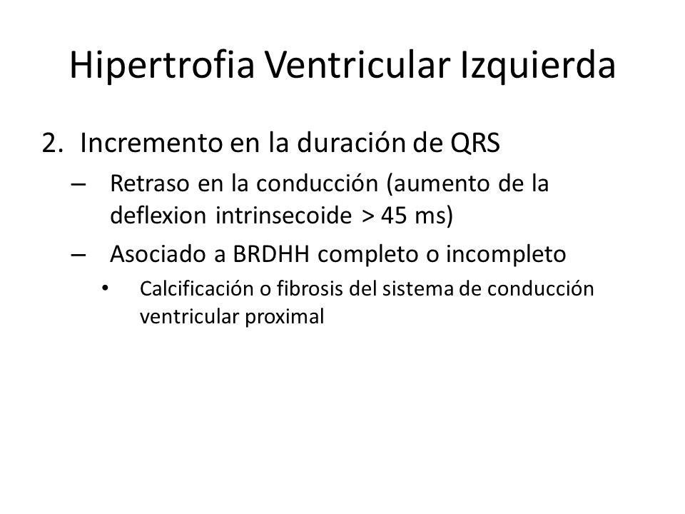 Hipertrofia Ventricular Izquierda 2.Incremento en la duración de QRS – Retraso en la conducción (aumento de la deflexion intrinsecoide > 45 ms) – Asoc