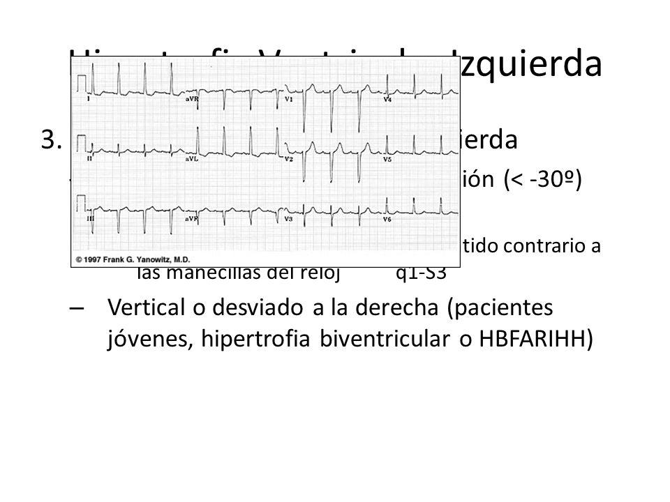 Hipertrofia Ventricular Izquierda 3.Desviación del Eje QRS a la izquierda – Horizontalizacion o franca desviación (< -30º) Giro sobre su eje antero-po