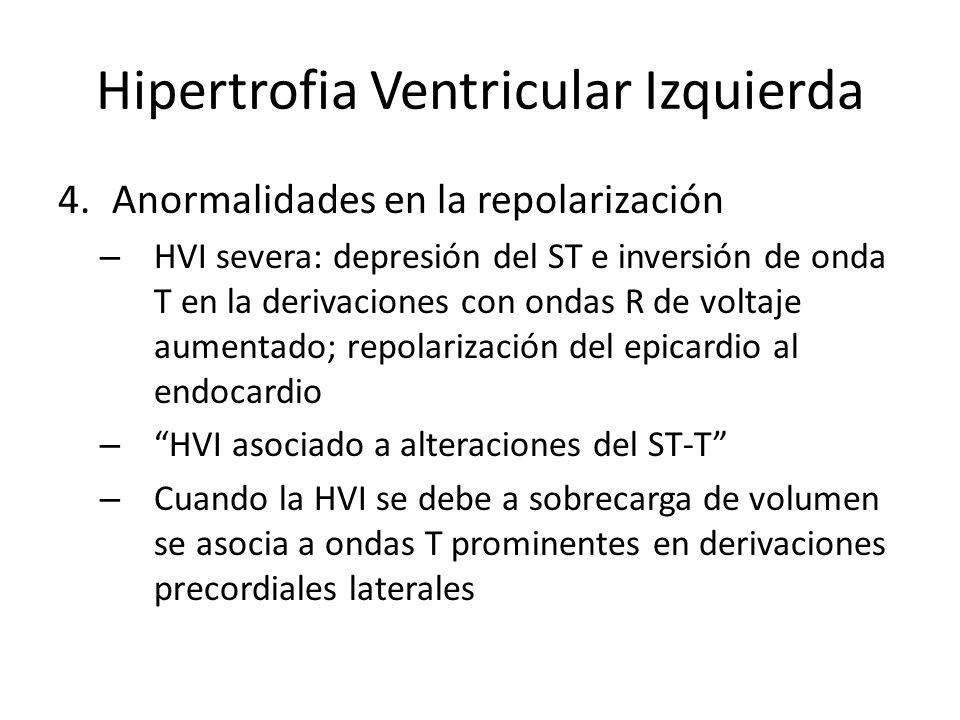 Hipertrofia Ventricular Izquierda 4.Anormalidades en la repolarización – HVI severa: depresión del ST e inversión de onda T en la derivaciones con ond