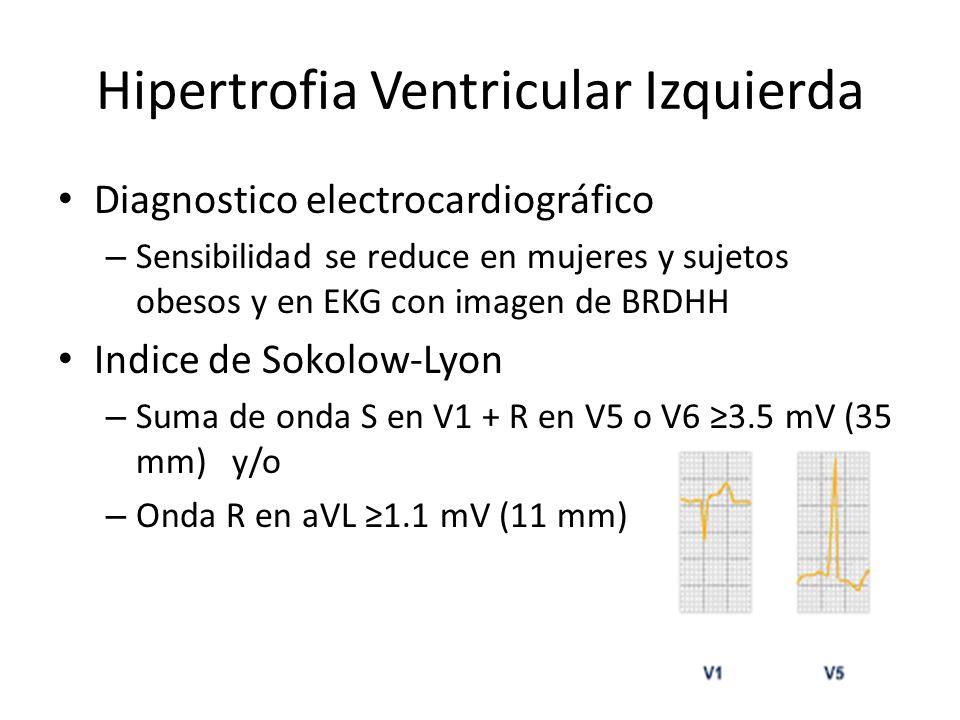 Hipertrofia Ventricular Izquierda Diagnostico electrocardiográfico – Sensibilidad se reduce en mujeres y sujetos obesos y en EKG con imagen de BRDHH I