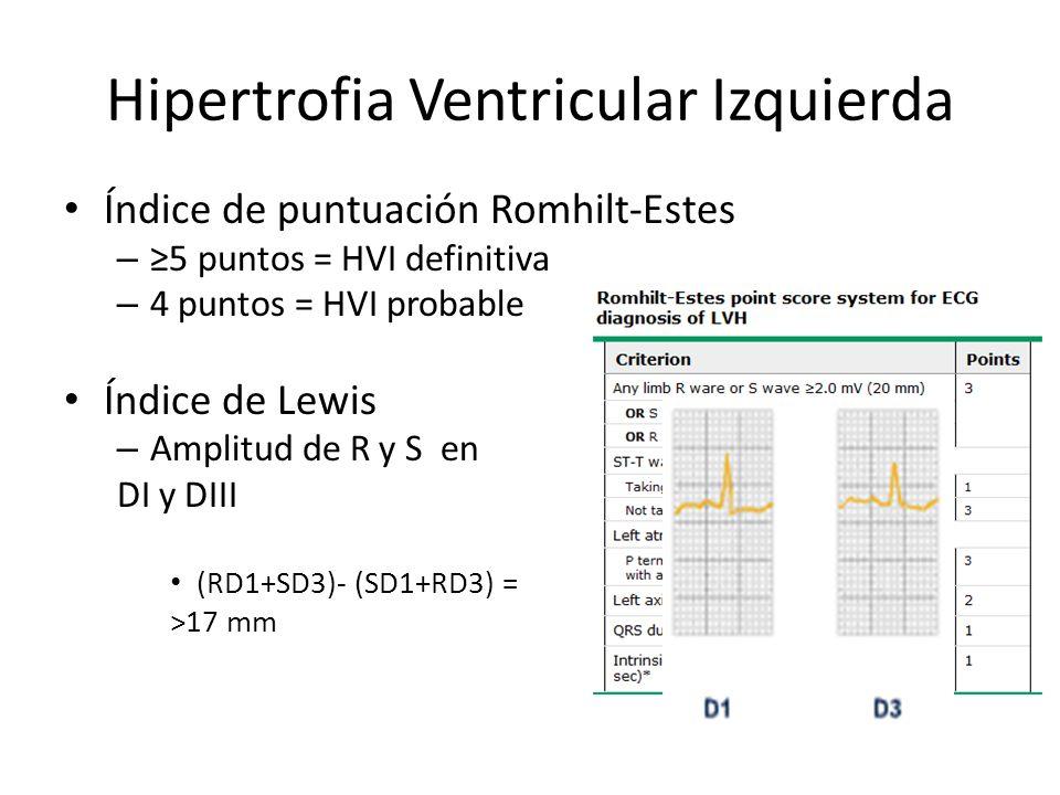 Hipertrofia Ventricular Izquierda Índice de puntuación Romhilt-Estes – 5 puntos = HVI definitiva – 4 puntos = HVI probable Índice de Lewis – Amplitud