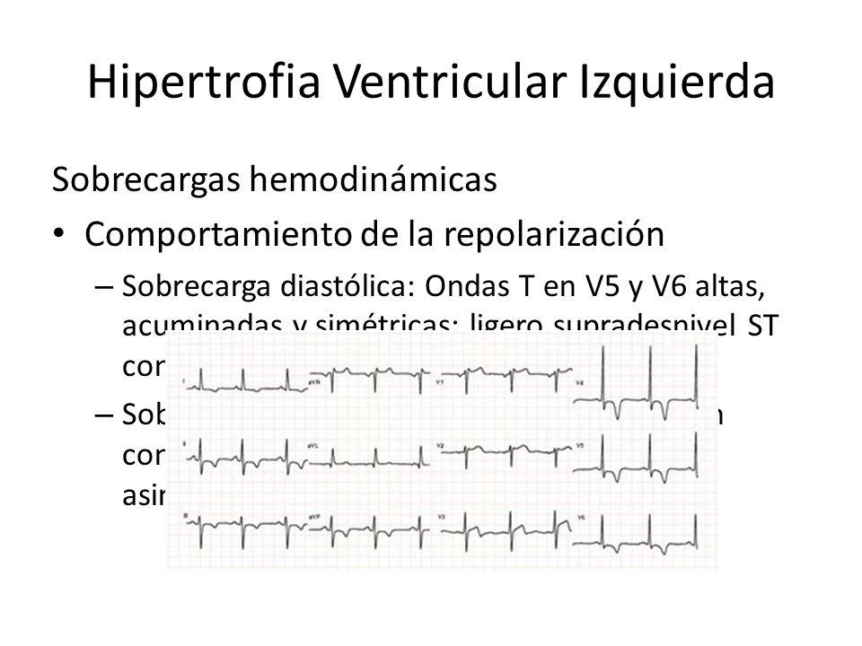 Hipertrofia Ventricular Izquierda Sobrecargas hemodinámicas Comportamiento de la repolarización – Sobrecarga diastólica: Ondas T en V5 y V6 altas, acu