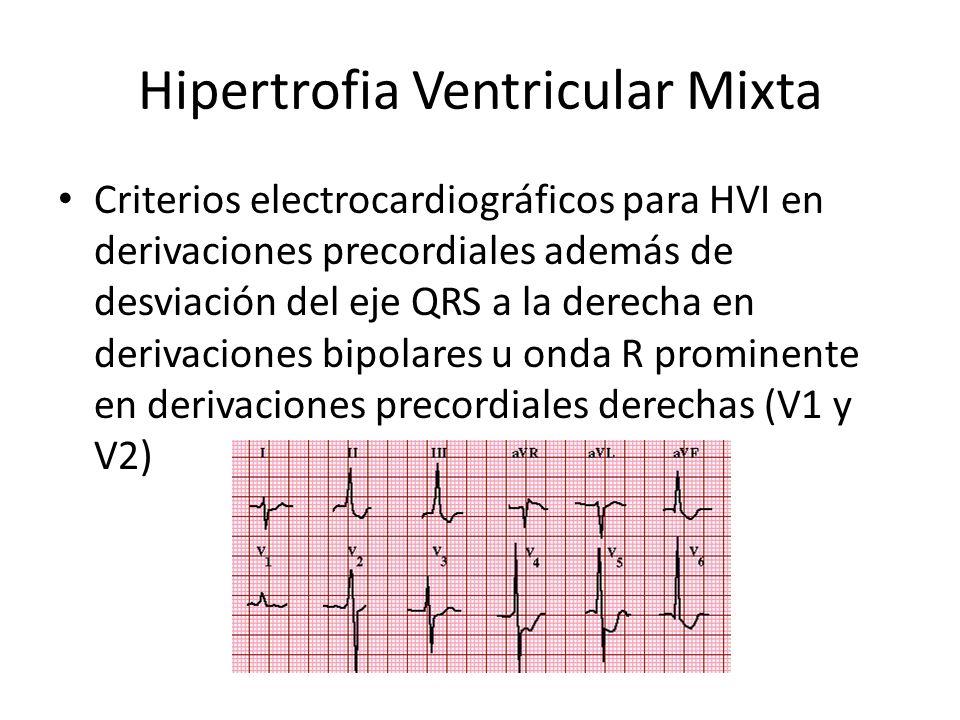 Hipertrofia Ventricular Mixta Criterios electrocardiográficos para HVI en derivaciones precordiales además de desviación del eje QRS a la derecha en d