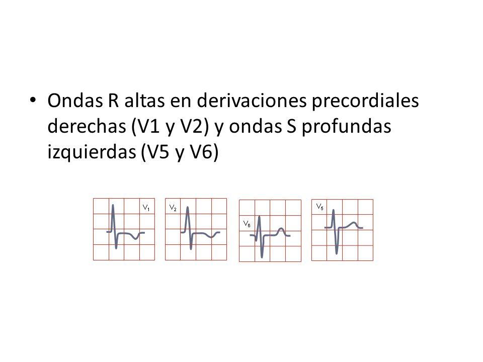 Hipertrofia Ventricular Izquierda 4.Anormalidades en la repolarización – HVI severa: depresión del ST e inversión de onda T en la derivaciones con ondas R de voltaje aumentado; repolarización del epicardio al endocardio – HVI asociado a alteraciones del ST-T – Cuando la HVI se debe a sobrecarga de volumen se asocia a ondas T prominentes en derivaciones precordiales laterales