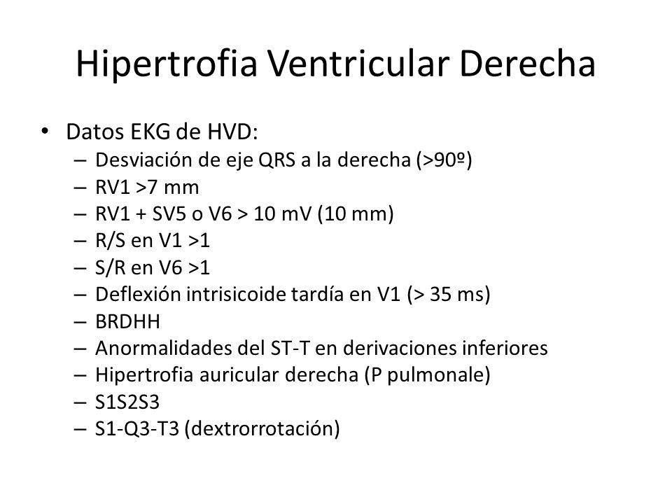 Hipertrofia Ventricular Derecha Datos EKG de HVD: – Desviación de eje QRS a la derecha (>90º) – RV1 >7 mm – RV1 + SV5 o V6 > 10 mV (10 mm) – R/S en V1