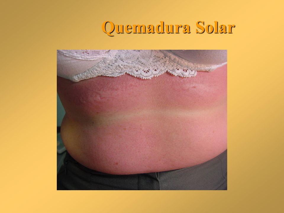 Quemadura Solar Quemadura Solar
