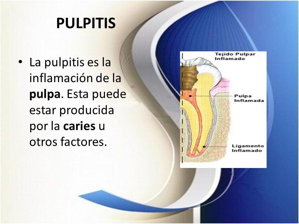 PULPITIS La pulpitis es la inflamación de la pulpa. Esta puede estar producida por la caries u otros factores.