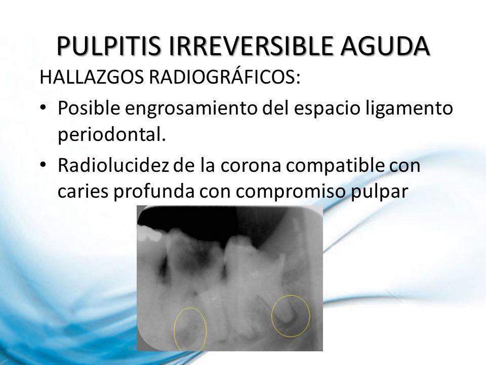 PULPITIS IRREVERSIBLE AGUDA HALLAZGOS RADIOGRÁFICOS: Posible engrosamiento del espacio ligamento periodontal. Radiolucidez de la corona compatible con