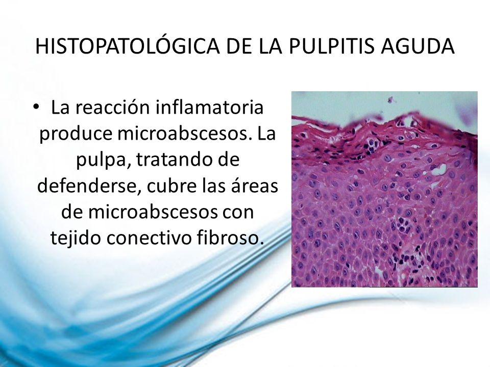 HISTOPATOLÓGICA DE LA PULPITIS AGUDA La reacción inflamatoria produce microabscesos. La pulpa, tratando de defenderse, cubre las áreas de microabsceso