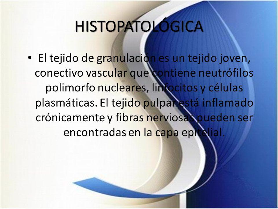 HISTOPATOLÓGICA El tejido de granulación es un tejido joven, conectivo vascular que contiene neutrófilos polimorfo nucleares, linfocitos y células pla