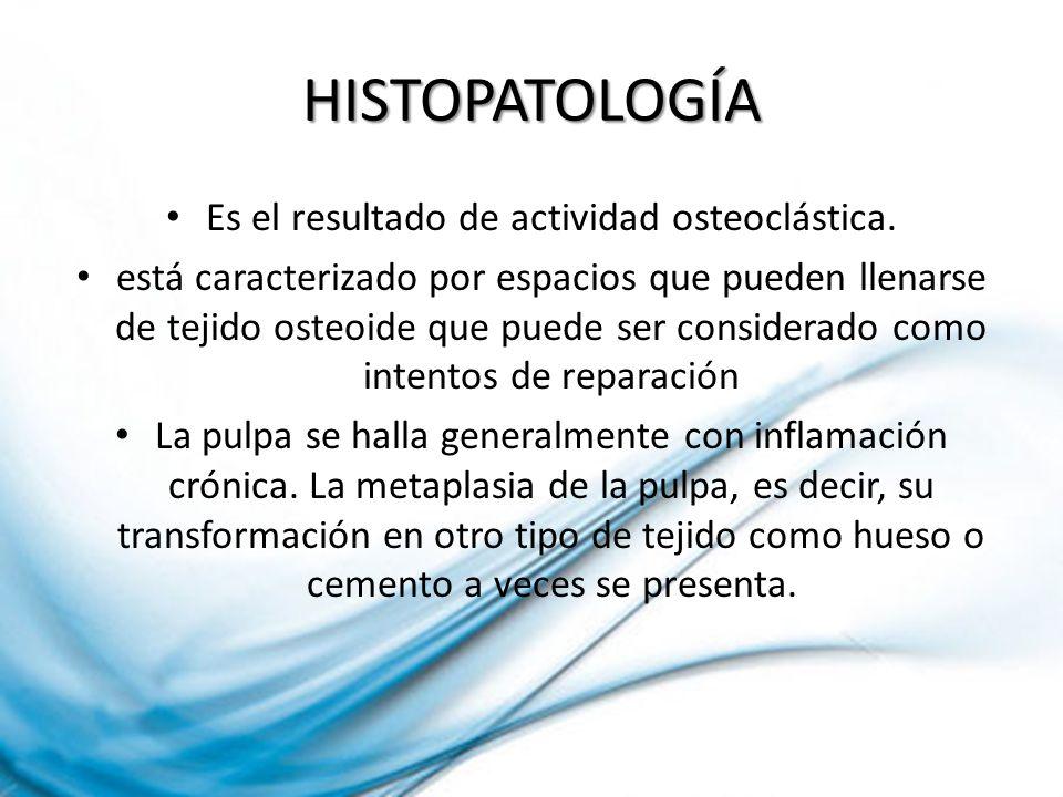 HISTOPATOLOGÍA Es el resultado de actividad osteoclástica. está caracterizado por espacios que pueden llenarse de tejido osteoide que puede ser consid