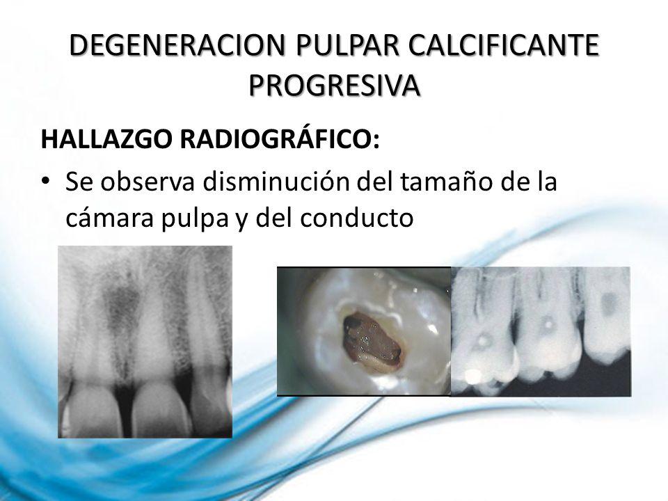HALLAZGO RADIOGRÁFICO: Se observa disminución del tamaño de la cámara pulpa y del conducto DEGENERACION PULPAR CALCIFICANTE PROGRESIVA