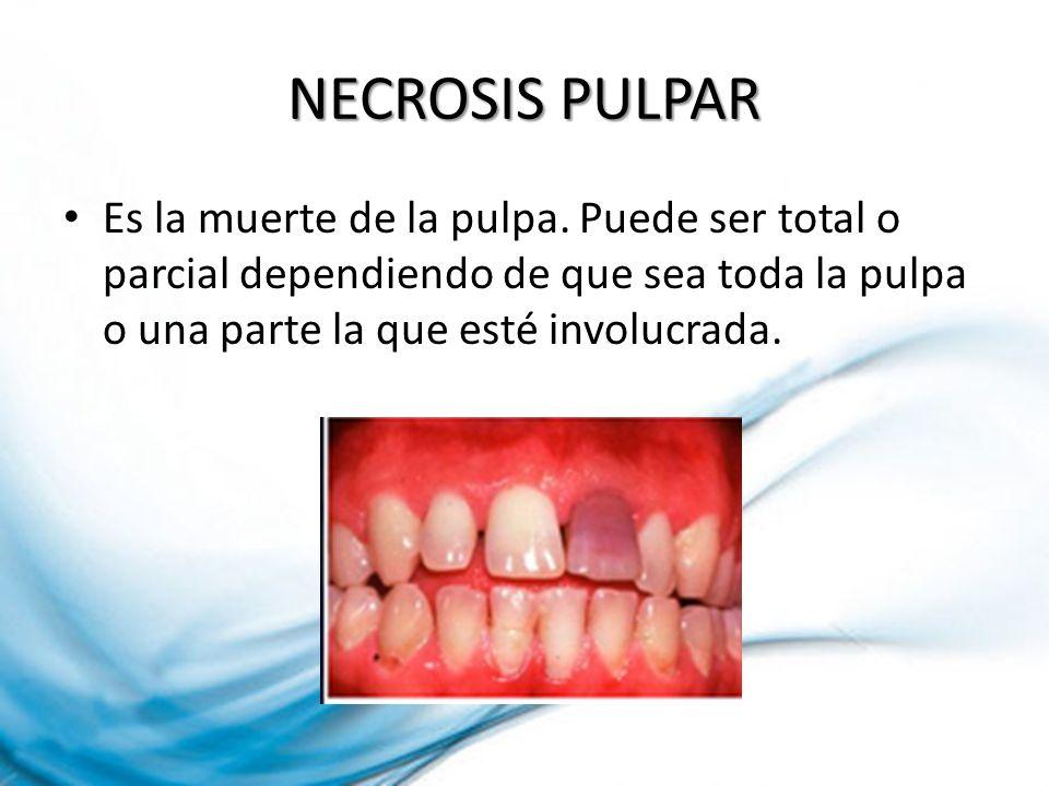 NECROSIS PULPAR Es la muerte de la pulpa. Puede ser total o parcial dependiendo de que sea toda la pulpa o una parte la que esté involucrada.