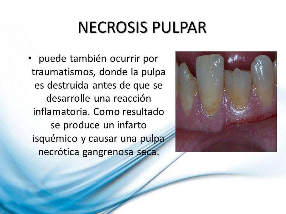 NECROSIS PULPAR puede también ocurrir por traumatismos, donde la pulpa es destruida antes de que se desarrolle una reacción inflamatoria. Como resulta
