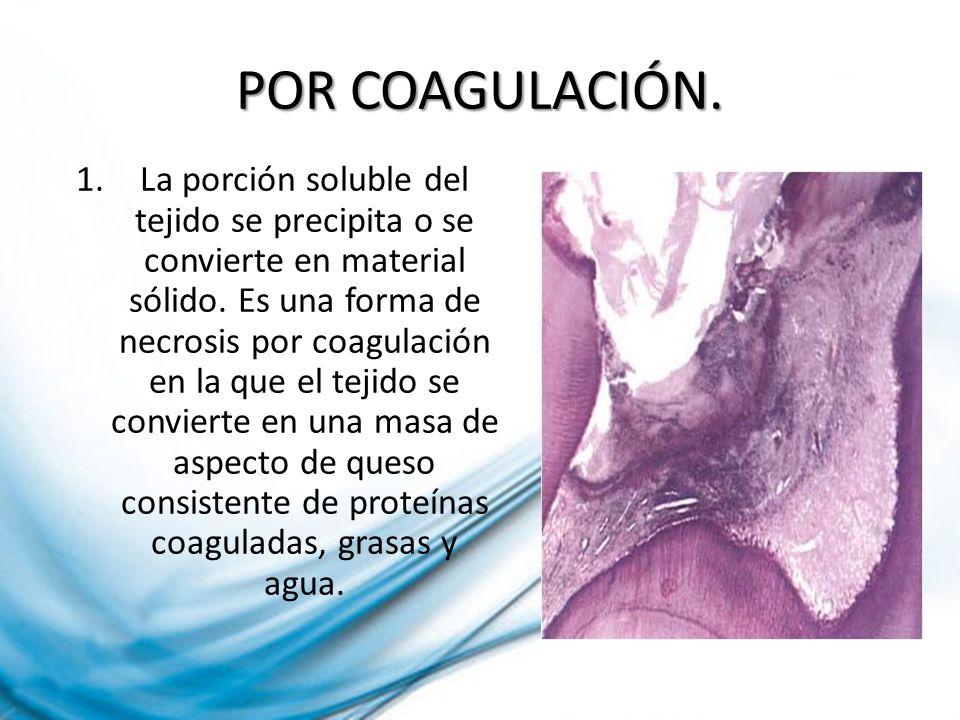POR COAGULACIÓN. 1.La porción soluble del tejido se precipita o se convierte en material sólido. Es una forma de necrosis por coagulación en la que el