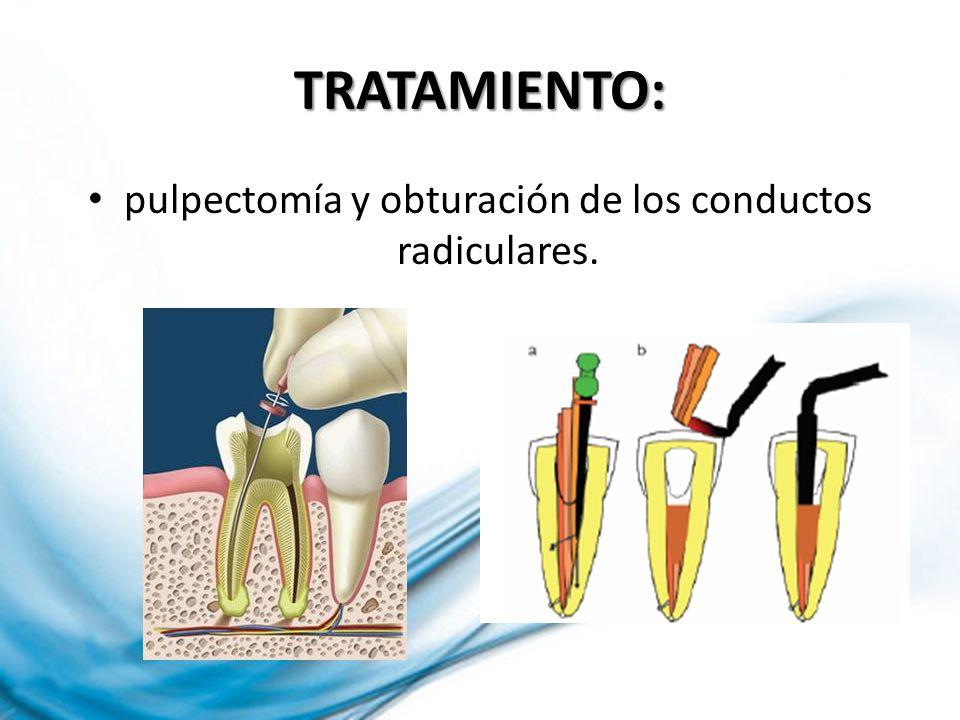 TRATAMIENTO: pulpectomía y obturación de los conductos radiculares.