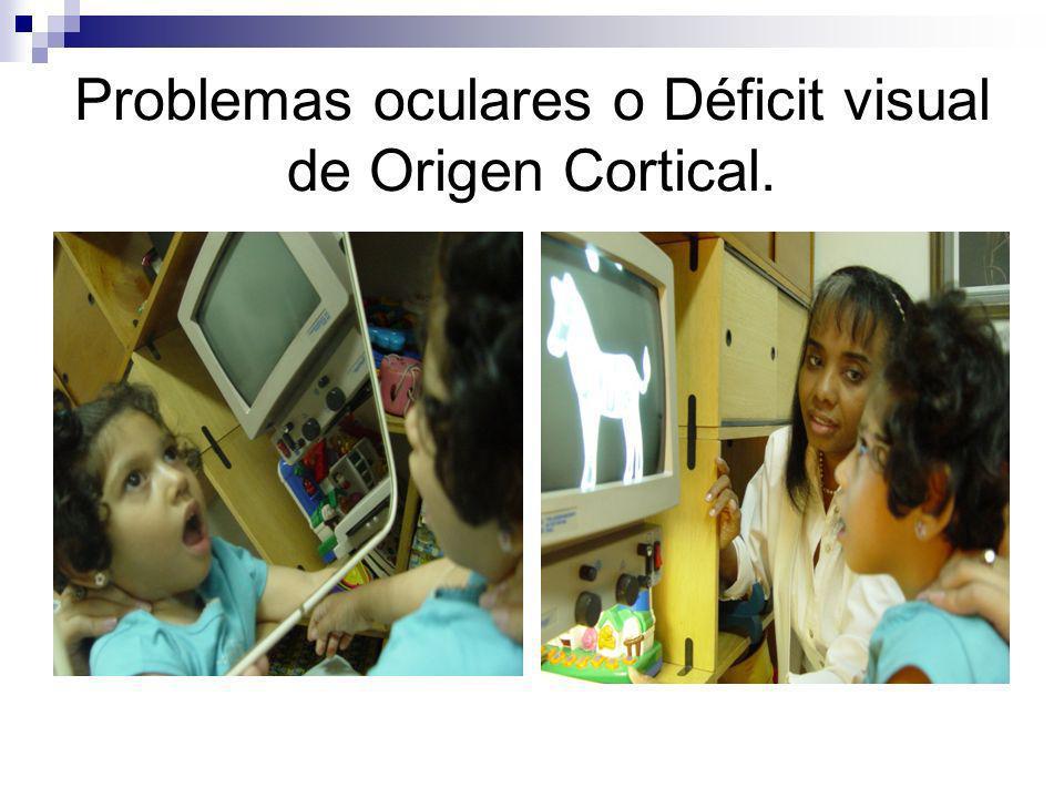 Alteraciones Visuales: Patologías oculares mas frecuentes en los niños ] ACROMATOPSIA Y DISCROMATOPSIA ] ALBINISMO Y ALBINISMO OCULAR ] AMBLIOPIA ] ANIRIDIA ] AFAQUIA Y SEUDOAFAQUIA ] COLOBOMAS ] RETINOPATIA DIABÉTICA ] GLAUCOMA ] RETINITIS PIGMENTOSA ] HEMIANOPSIA ] ENFERMEDAD MACULAR ] NEURITIS ÓPTICA ] NISTAGMUS ] ATROFIA OPTICA ] DISGENESIA DE SEGMENTO ANTERIOR ] NISTAGMUS ] RETINOPATIA DE LA PREMATUREZ ] HIPOPLASIA NERVIO ÓPTICO ] MICROCEFALIA ] PARÁLISIS CEREBRAL ] HIDROCEFALIA ] DEFECTOS REFRACTIVOS ] COREORRETINITIS ] MICROFTALMIA