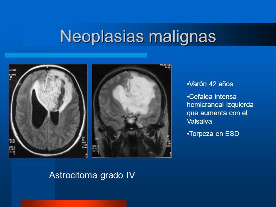Neoplasias malignas Astrocitoma grado IV Varón 42 años Cefalea intensa hemicraneal izquierda que aumenta con el Valsalva Torpeza en ESD