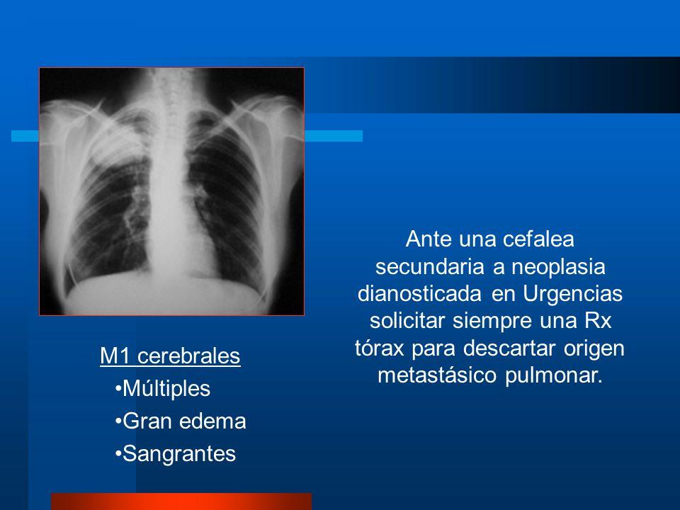 Ante una cefalea secundaria a neoplasia dianosticada en Urgencias solicitar siempre una Rx tórax para descartar origen metastásico pulmonar. M1 cerebr