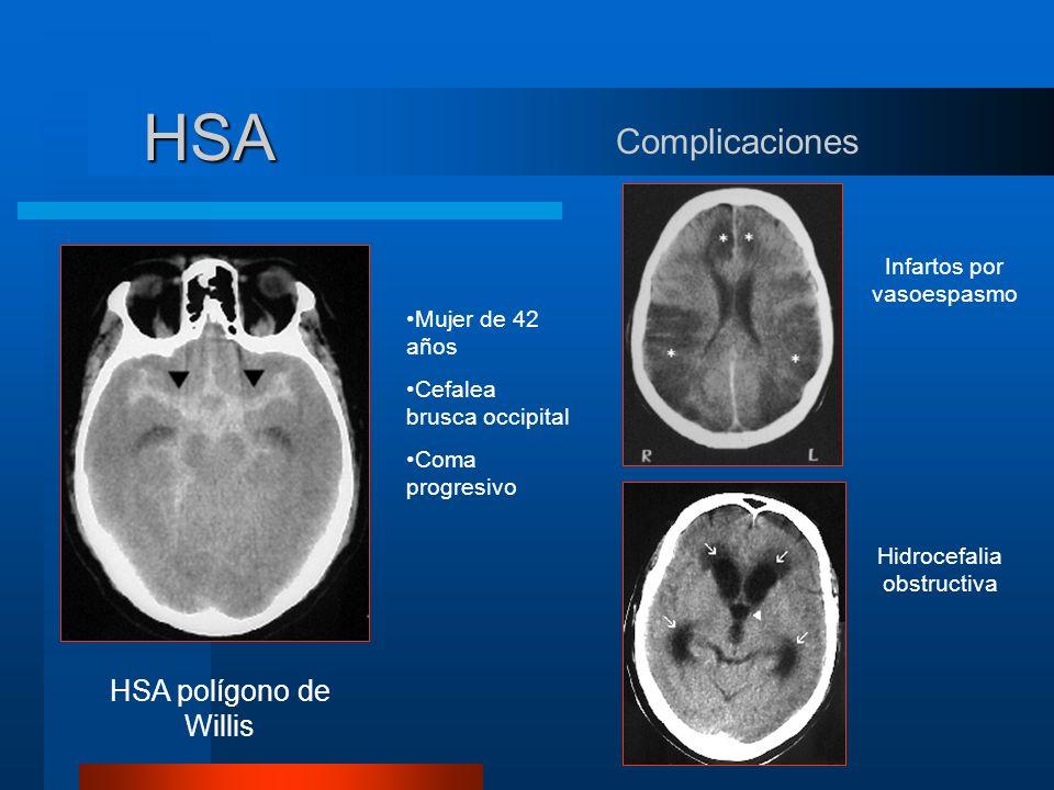 HSA Complicaciones Infartos por vasoespasmo Hidrocefalia obstructiva Mujer de 42 años Cefalea brusca occipital Coma progresivo HSA polígono de Willis