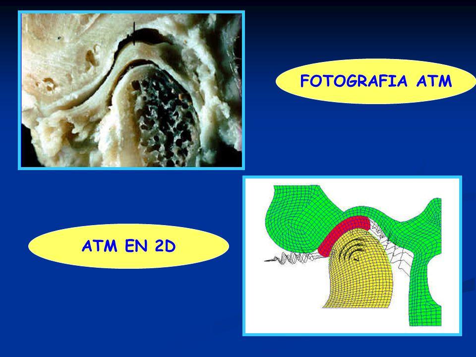 FOTOGRAFIA ATM ATM EN 2D