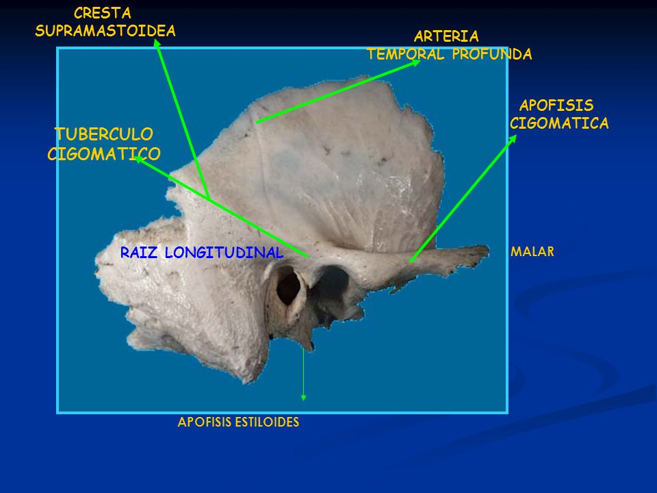 APOFISIS ESTILOIDES ARTERIA TEMPORAL PROFUNDA APOFISIS CIGOMATICA CRESTA SUPRAMASTOIDEA MALAR RAIZ LONGITUDINAL TUBERCULO CIGOMATICO