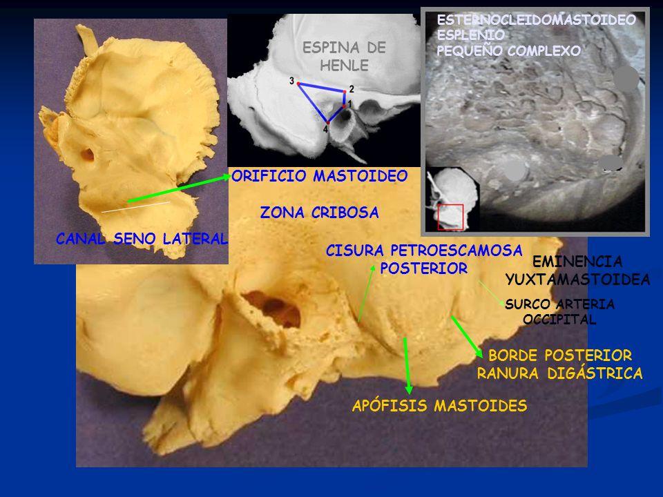 APÓFISIS MASTOIDES BORDE POSTERIOR RANURA DIGÁSTRICA ORIFICIO MASTOIDEO CISURA PETROESCAMOSA POSTERIOR ESPINA DE HENLE ZONA CRIBOSA ESTERNOCLEIDOMASTO