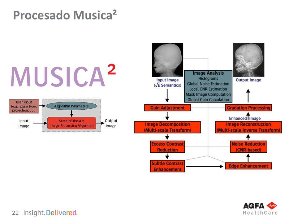 22 Procesado Musica²