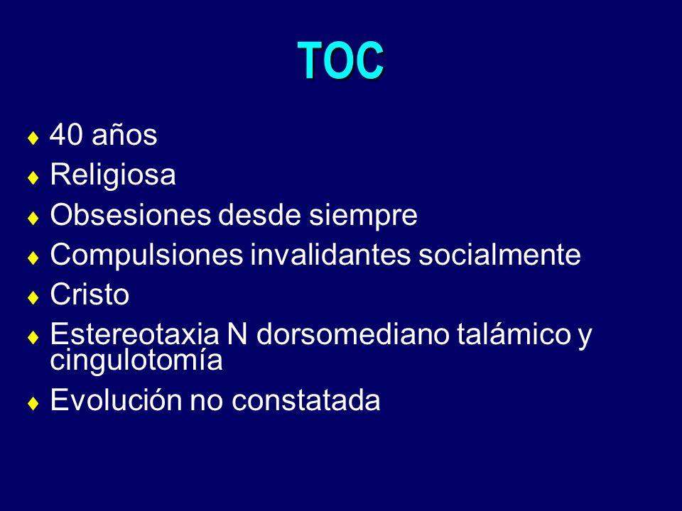 TOC 40 años Religiosa Obsesiones desde siempre Compulsiones invalidantes socialmente Cristo Estereotaxia N dorsomediano talámico y cingulotomía Evoluc