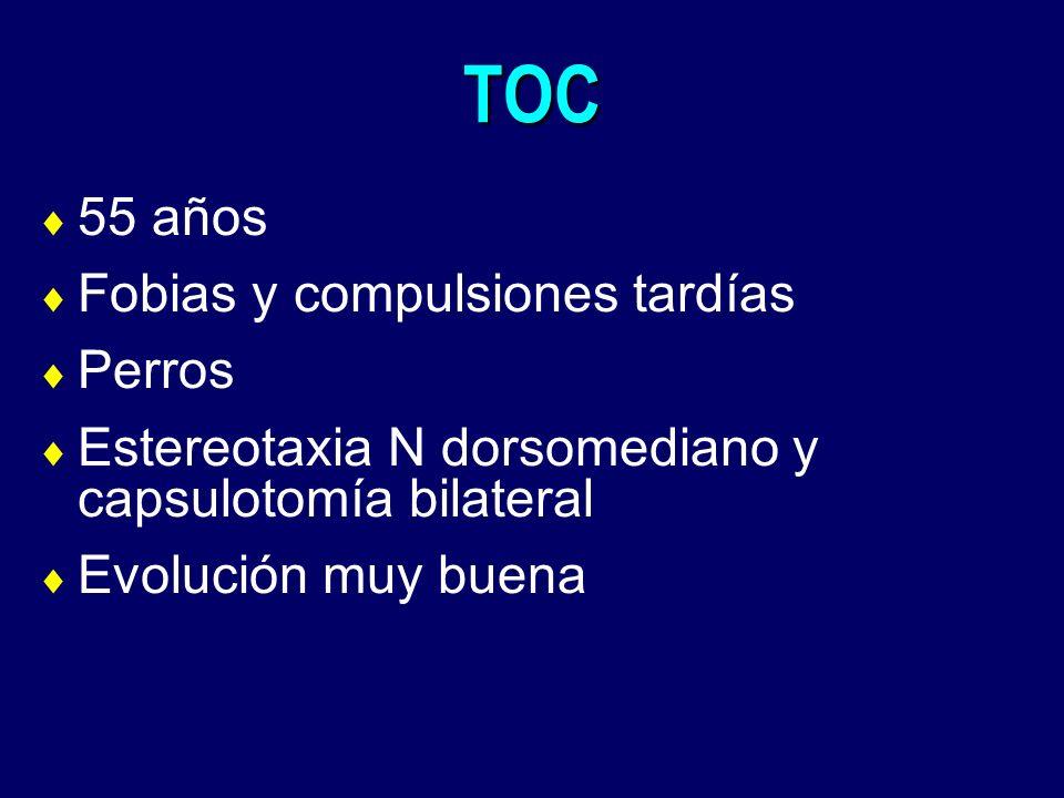 TOC 55 años Fobias y compulsiones tardías Perros Estereotaxia N dorsomediano y capsulotomía bilateral Evolución muy buena
