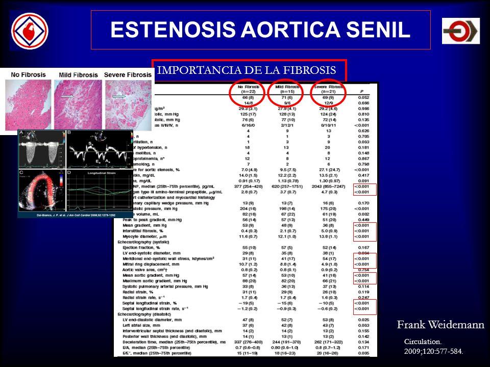 ESTENOSIS AORTICA SENIL IMPORTANCIA DE LA FIBROSIS Circulation. 2009;120:577-584. Frank Weidemann