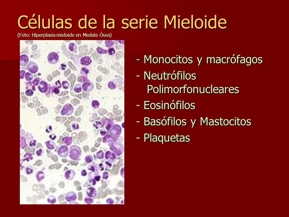 Células de la serie Mieloide (Foto: Hiperplasia mieloide en Medula Ósea) - Monocitos y macrófagos - Neutrófilos Polimorfonucleares - Eosinófilos - Bas