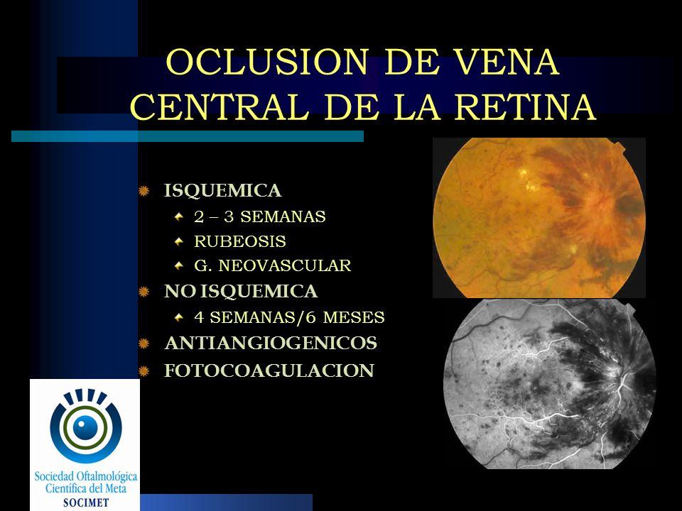 OCLUSION DE VENA CENTRAL DE LA RETINA ISQUEMICA 2 – 3 SEMANAS RUBEOSIS G. NEOVASCULAR NO ISQUEMICA 4 SEMANAS/6 MESES ANTIANGIOGENICOS FOTOCOAGULACION
