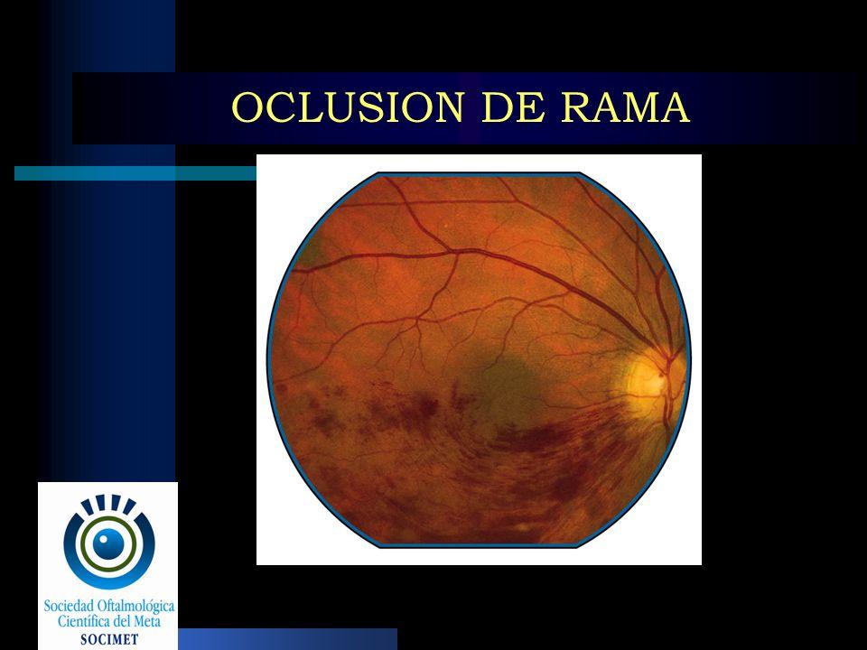 OCLUSION DE RAMA