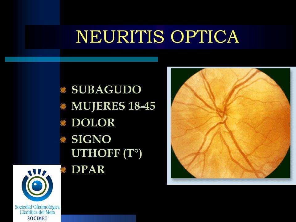 NEURITIS OPTICA SUBAGUDO MUJERES 18-45 DOLOR SIGNO UTHOFF (T°) DPAR