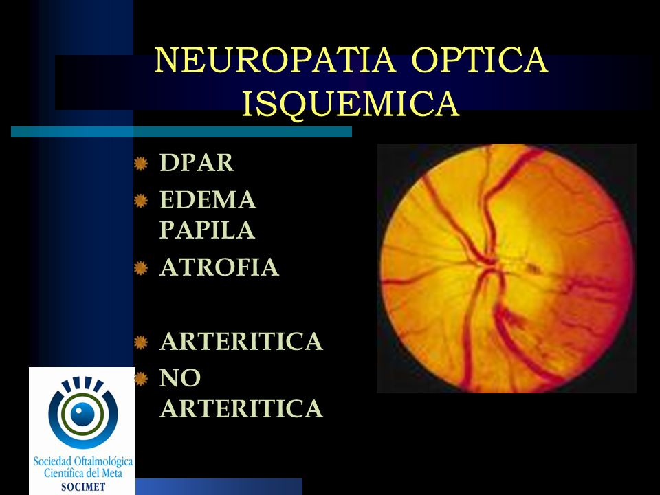 NEUROPATIA OPTICA ISQUEMICA DPAR EDEMA PAPILA ATROFIA ARTERITICA NO ARTERITICA
