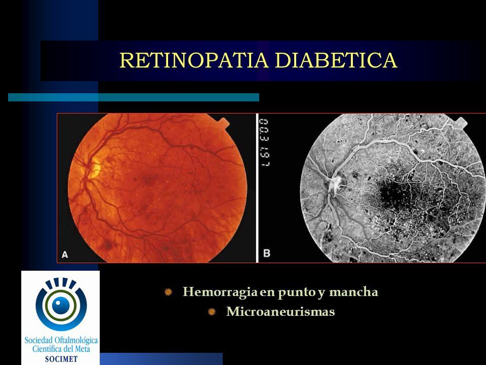 RETINOPATIA DIABETICA Hemorragia en punto y mancha Microaneurismas