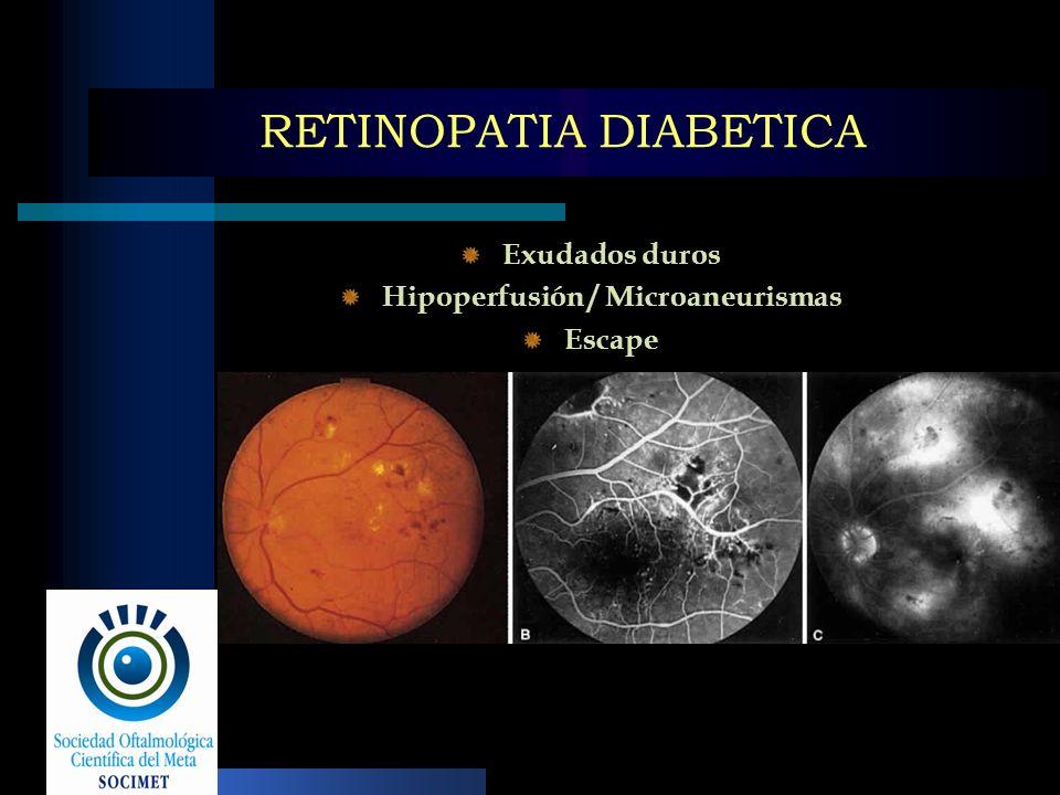 RETINOPATIA DIABETICA Exudados duros Hipoperfusión / Microaneurismas Escape